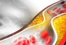 Heart disease & Stroke / health