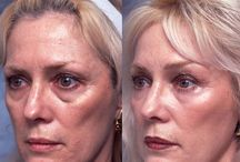 Cure Puffy Eye Bags With Face Regeneration Exercises