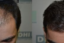 Hair Restoration - NW class 3 / Direct Hair Implantation technique eliminates the use of scalpels, stitches and the pain during the procedure. By choosing Direct Hair Implantation you can enjoy natural results, lifetime growth and maximum safety.  Read more at http://www.dhiglobal.com/direct-hair-implantation/