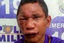 alergico