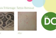 tattoo removal winnipeg