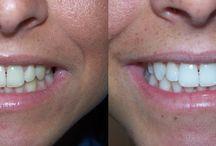 chirurgie dentaire en tunisie