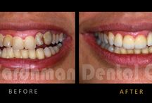 Veneers & All-Ceramic Crowns : Enhance Ur Smile @ VDC / Cosmetic Dentistry