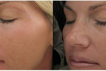 Nose Job Surgery in Sydney