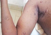 Neurofibromatosis Syndrome