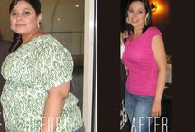 Gastric Sleeve / by Obesity Control Center