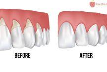 Natural Dental Care