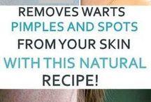 Remove Skin Tags