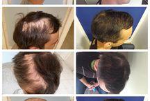 PHAEYDE Clinic / Hårimplantater på PHAEYDE Ungarn ved hjælp af FUE og S.H.E. (Single Hair Extraction) metoder. FUE proces er human og den har vidunderlige resultater.