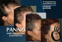 Cirugía Capilar en cicatrices / A través de la técnica MicroFUE es posible cubrir las cicatrices del cuero cabelludo.