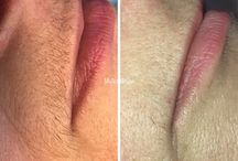 My work - permanent hair removal