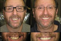 Patient Transformations / Before and after photos from actual patients.