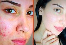 come curare la pelle
