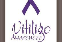 Vitiligo Awareness