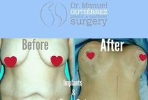 Tummy Tuck Before - After