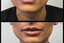 Lip fill