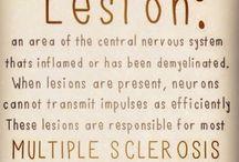 Health - brain lesions