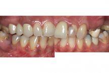 Clinica dentale in Romania. / Studio dentistico  per voi! Alla ricerca di una clinica odontoiatrica e vorrei saperne di più?  Vi invitiamo a vedere la nostra clinica in Romania e contattaci subito!
