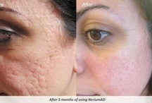 Nerium Real Results - Photos / Nerium's Line of Anti-Aging and Skin Healing Products are a scientific Break Through!   Accidentally discovered during researching cancer, this natural botanical based agent is doing miracles for skin, in a gentle and healthy way / by Lisa Clark