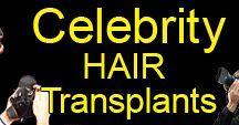 Hair transplant Surgery UK