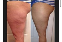 It works!!!! / Body wraps, health products