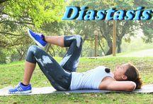 Abdos Diastasis