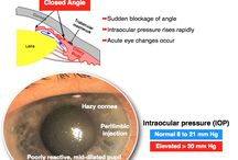 eyes medicine