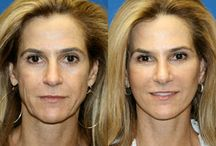 Amir M. Karam, MD : Neck liposuction / Patient had a history of permanent filler placed into the upper lip resulting in an over projected and disproportionate shape.An upper lip reduction was performed to balance the upper and lower lips.