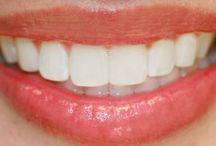 Diş ve ağız sağlığı / Bu bilgiler alıntıdır.Sağlık sorunlarınızda önce doktora gidiniz.