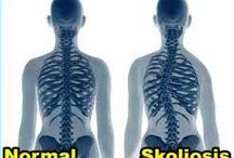 obat tradisional tulang bengkok