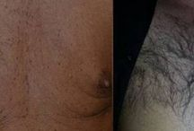 Body Hair Restoration / With DHI it is now possible to transplant hair to any part of the body.