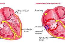 Es heart condition and medical