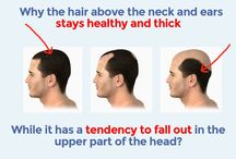 Hair loss treatment Videos / It is about the Endhairloss.eu hair loss treatment, which is available here: http://endhairloss.eu