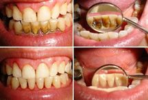 Diş tartarları için