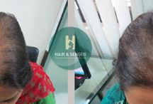 Hairloss in Women / Get best treatment and consultancy for Hairloss in Women