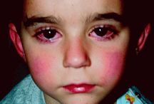 rheumatic research  / this board is to cause awareness about rheumatic fever
