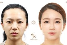Korean Eye Plastic Surgery / Korean Eye Plastic Surgery at JK Plastic Surgery