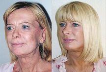 Facelift Workouts To Trim Sagging Face Skin / DIY No Surgery Nodal Facelift Performing Facial Manipulation Aerobics