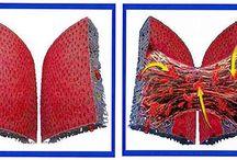 Adhesions - Scar Tissue / Adhesions - Scar Tissue / by Brenda Tollefson