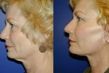 Appear More Youthful With Face Gymnastics Exercises: Ultimate Biological Facelifts / Natural Facelift Employing Facial Yoga Methods