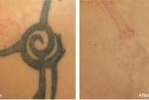 TATTOO REMOVAL BEFORE & AFTER PICTURES / Tattoo Removal Before & After Pictures