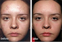 Acne (Before & After) / No matter your skin type, you can take steps to eliminate acne. For more information  and free skin care help, visit us at Infinitealoe-www.infinitealoe.com, www.facebook.com/infinitealoe @infinitealoe