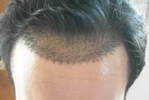 Hårtransplantation / Hårtransplantation är den enda metoden är permanent få tillbaka håret. Den här boarden handlar om hårtransplantationer och bilder som jag fått skickade till mig eftersom jag har några sajter som handlar om just hårtransplantationer och håravfall. Läs mer på http://www.hårtransplantationsguiden.se på svenska eller http://www.hairtransplanttourist.com på engelska.