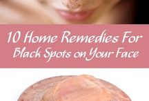 remedies for  black spots on your face