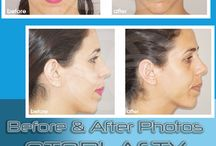 Otoplasty Ear Correction / Otoplasty, Ear Reshaping or Correction performed by Dr Kaye Ocean Clinic Marbella. Changes before and after Otoplasty are clearly visible.