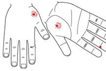 Sickle Cells disease