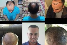 Real Hair Center / Hair Transplantation Center İn İstanbul / Turkey