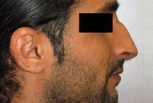 Nose Surgery (Rhinoplasty) / Before and After Photos of Patients from Masri Clinic