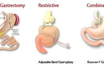 Gastric Bypass Reviews & Options