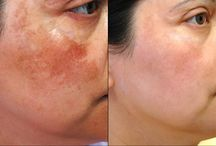 Pigmentation Treatment and London Dermatology Clinic